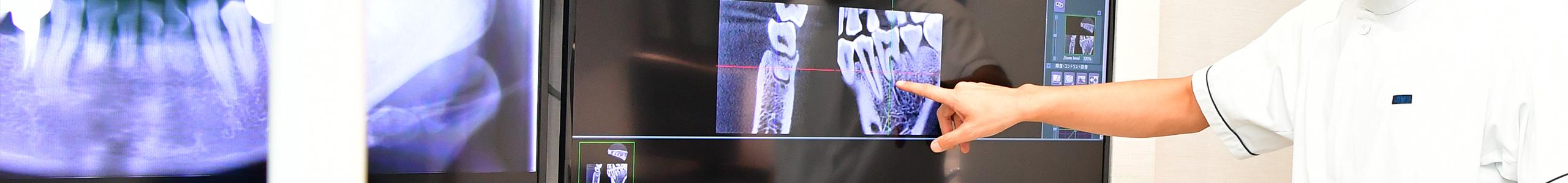 CTを利用した治療